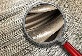 Η απώλεια μαλλιών είναι άλλη μια συνέπεια του κορονoϊού;