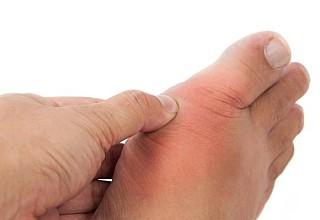 Ουρική αρθρίτιδα: Ποια τα πρώτα συμπτώματα – Πώς να την αντιμετωπίσετε