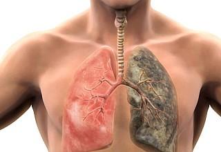 Σε πόσο καιρό θα καθαρίσουν οι πνεύμονές σας αν κόψετε σήμερα το κάπνισμα