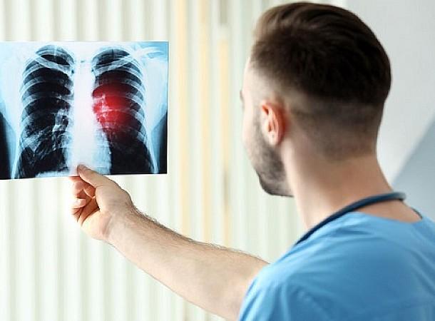 Καρκίνος πνεύμονα: 3η αιτία θανάτου στην Ελλάδα