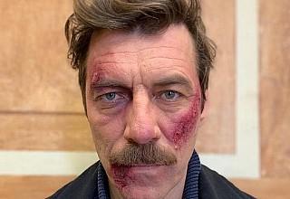 Γιάννης Στάνκογλου: Πώς έγινε μετά το ξύλο στις «Αγριες Μέλισσες»