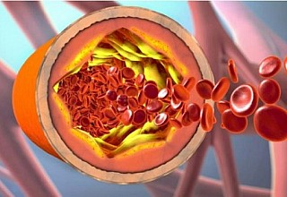 Χοληστερόλη: Το μεγάλο λάθος που κάνουν όσοι ξεκινούν να παίρνουν φάρμακα
