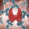 Θυρεοειδίτιδα Χασιμότο: Τι είναι, συμπτώματα και πότε πρέπει να σας δει γιατρός